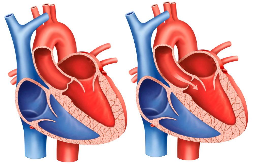 Cây thuốc Nam chữa bệnh hở van tim, Cây thuốc Nam chữa bệnh hở van tim – An toàn và hiệu quả không