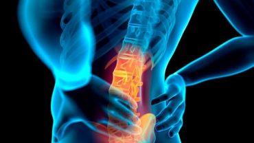 backache là gì?